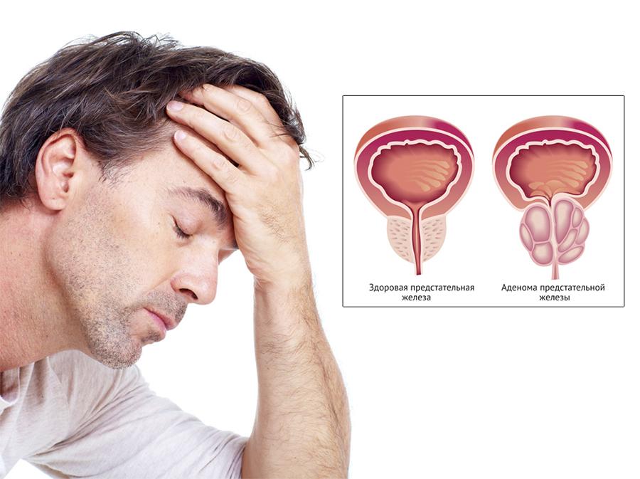 Гомеопатия при аденоме простаты - Мир гомеопатии