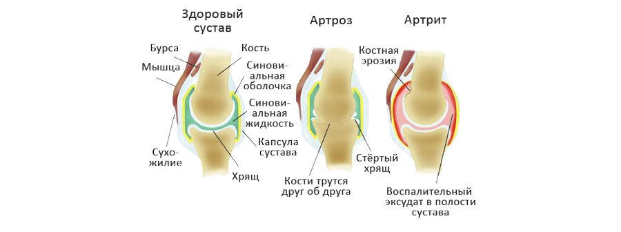 Артрит и артроз: лечение с помощью гомеопатии