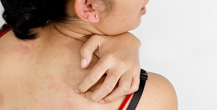 Лечение крапивницы при помощи гомеопатии