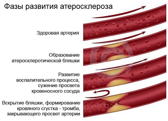 Диета при лечение атеросклероза сосудов головного мозга