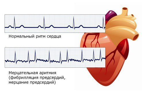 Аритмия сердца лечение и профилактика