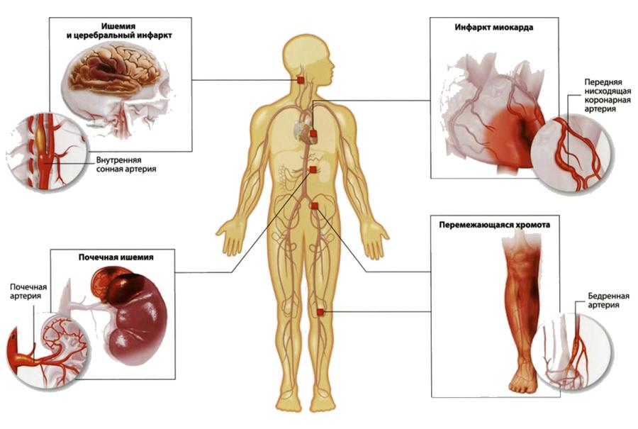 Уровень холестерина в крови 15