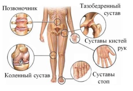 Ле ение на артрит