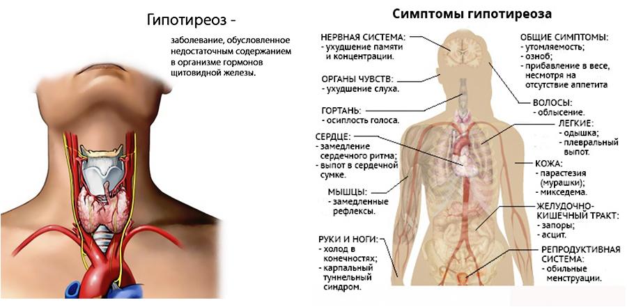 улучшиться ли функции органов при лечение гипотиреоза